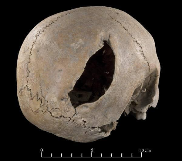 Large trepanation on the right side of the parietal bone of the skull